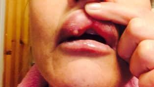 fillers läppar biverkningar
