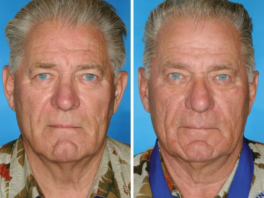 Båda dessa män har rökt, men tvillingen till höger har rökt 14 år längre än sin bror.