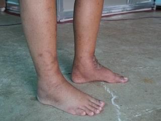 svullna ben efter flygresa