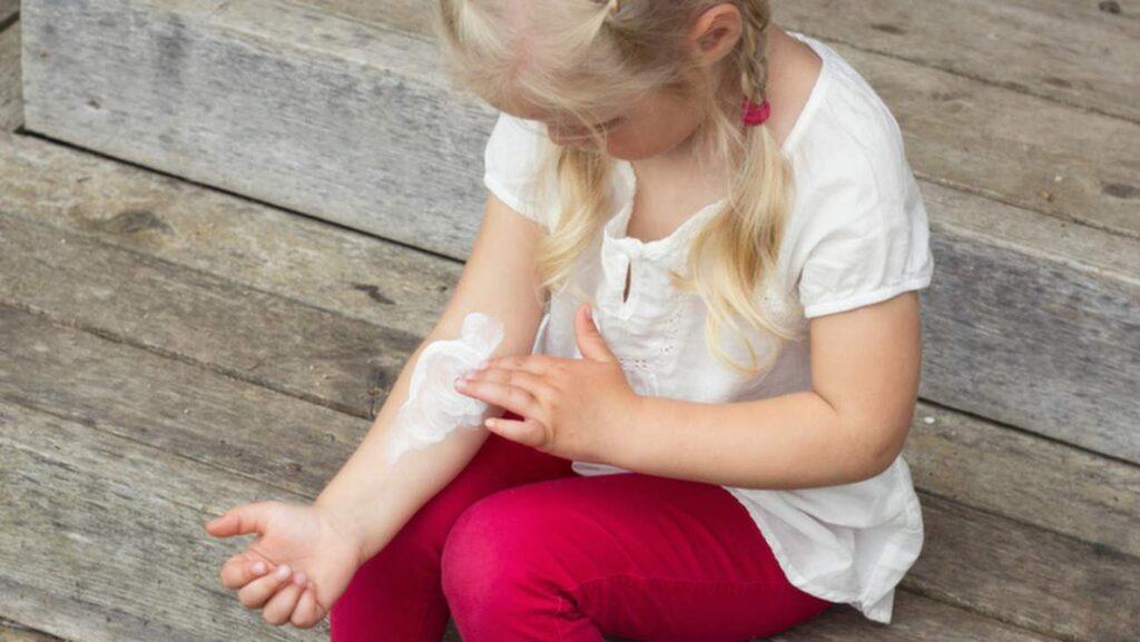 <p>Har ditt barn fått soleksem? Mild receptfri kortisonsalva kan lindra den värsta klådan.<br></p>