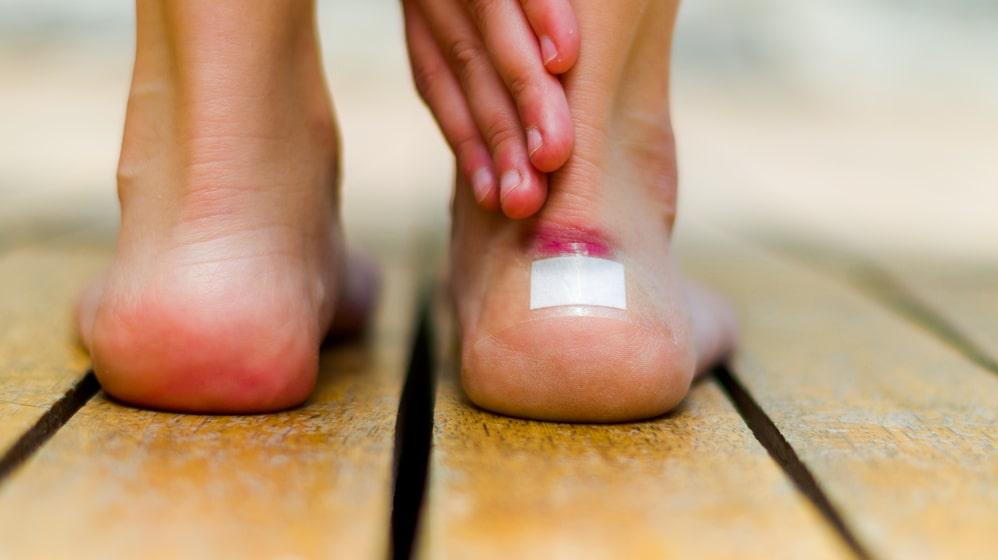 Skavsår på fötterna? Här är tipsen som gör att du slipper problem.