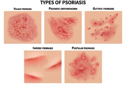 Illustrationer över psoriasis-varianterna Plackpsoriasis, erytroderm psoriasis, guttat psoriasis, invers psoriasis och pustulös psoriasis