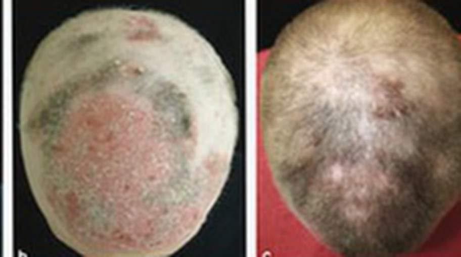 <p>Forskarteamet har nu ansökt om anslag för ytterligare forskning. Deras mål är att ta fram en mindre högkoncentrerad salva som ska kunna hjälpa hårväxten hos personer som lider av mildare reumatism, och i förlängningen dem som lider av vanligt håravfall.</p>