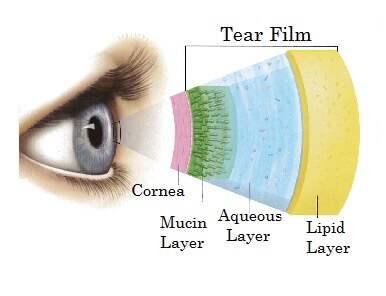 skräp i ögat som ej försvinner