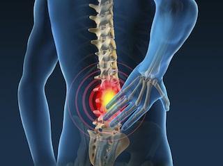 inflammation i ryggen symptom
