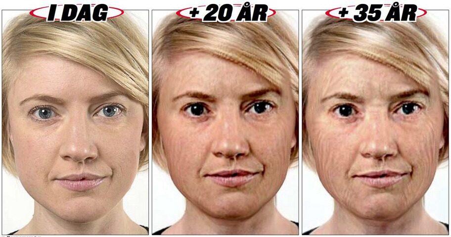 RÖKRYNKOR. Expressens reporter Johanna Ekström testade programmet Ad age som visar hur huden åldras på en rökare. Resultatet ser du ovan.