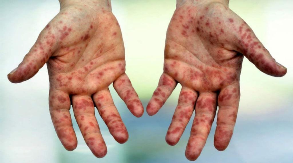 <p>Höstblåsor visar sig på händer fötter och runt munnen. <br></p>