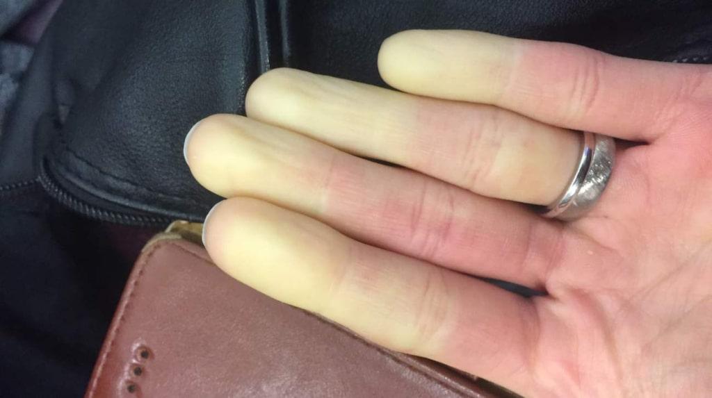 <p>Får du också vita fingrar väldigt lätt? Då kan du ha Raynauds sjukdom.</p>