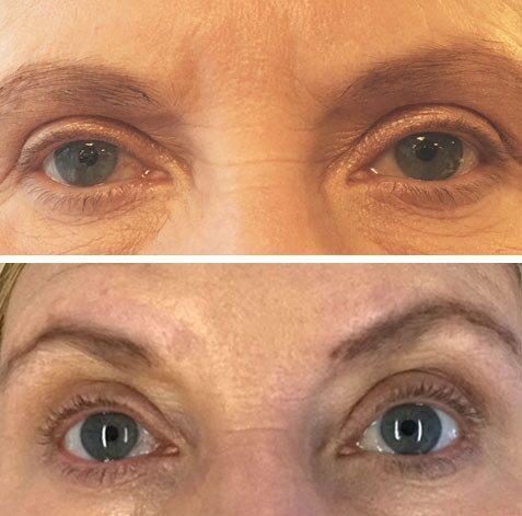 """Före (över) och efter (under) cirka 15 veckors användning av Lashfood ögonfransserum: """"Efter en månads användande såg jag ett litet minimalt resultat. Fransarna upplevs som något fylligare och tätare. Efter ytterligare en månads användning består effekten."""""""