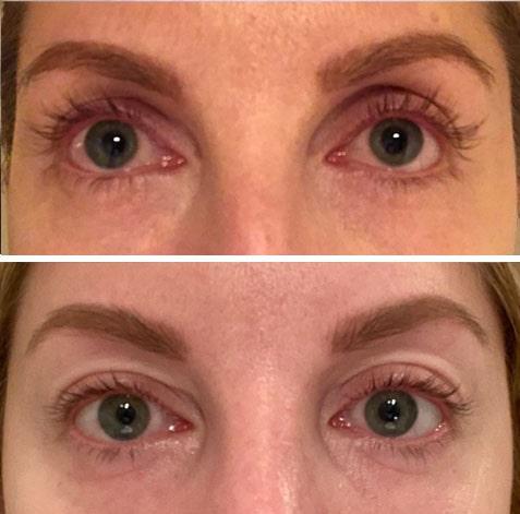 """Före (över) och efter (under) cirka 15 veckors användning av Medik8:s ögonfransserum: """"De känns visserligen friskare och starkare, men om de överhuvudtaget har växt några millimeter har det gått så långsamt att jag inte ens kan se förändringen. Det positiva är att mina fransar inte alls känns förstörda och bryts av som när jag testat andra ögonfransserum."""""""