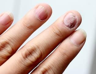 tabletter mot nagelsvamp