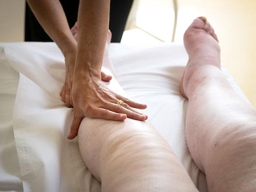 Lymfödem behandlas ofta med speciellt anpassad massage och specialutprovade stödstrumpor.