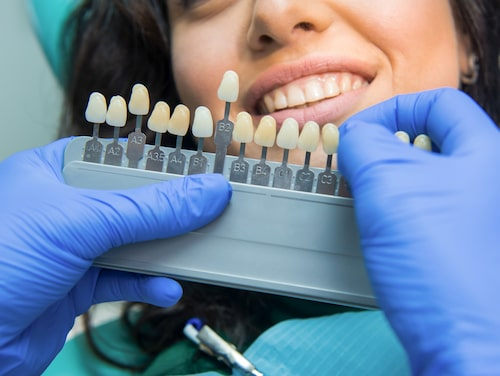 Det är väldigt få som får helt vita tänder efter en tandblekning. Däremot kan tänderna ofta bli ett par nyanser vitare.