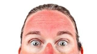 bränt sig i solen ansiktet