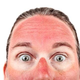 röd solbränna blir brun