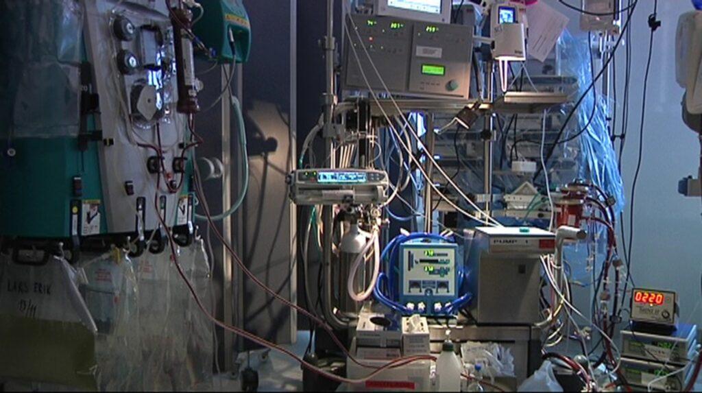 Till och med den 7 februari har 105 personer behövt intensivvårdas på grund av influensa. Intensivvårdsavdelningarna är hårt belastade på vissa sjukhus. Flera patienter har behövt vårdas med hjärtlungmaskin, ECMO.